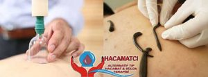 suluk hacamat tedavi hizmetleri 300x111 - suluk-hacamat-tedavi-hizmetleri