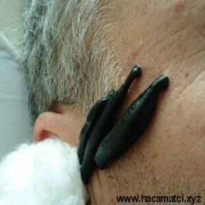 goz tansiyonu suluk 300x300 - Sülük ile Göz Tansiyonu Tedavisi